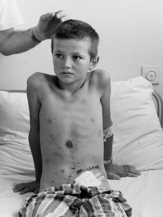 Ivan Miilos, 9, is examined in a hospital in Mostar. He was hit by shrapnel while lying in his bed.