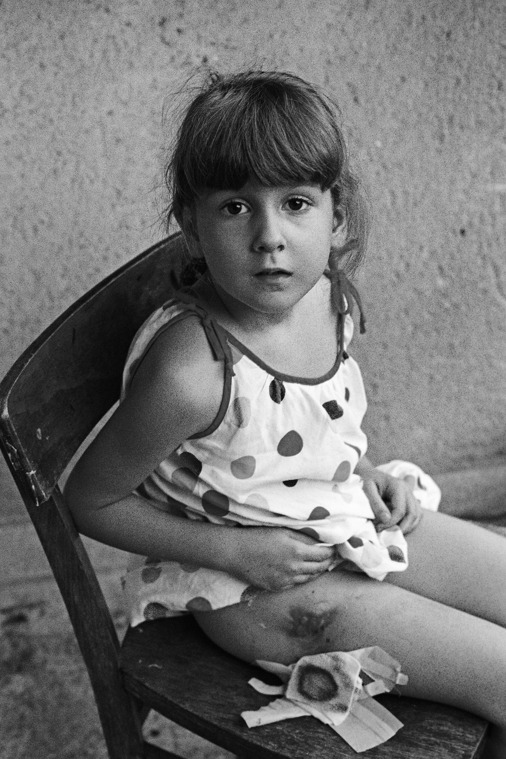 """5 year old Olja Radulovic almost bled to death after she was hit in the back and legs by shrapnel from a mortar shell as she and her sister played in her garden during a Serbian """"cease fire."""""""